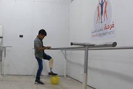 """مؤسسة """"فرحة"""" الملاذ الوحيد لمبتوري الأطراف في الغوطة الشرقية"""