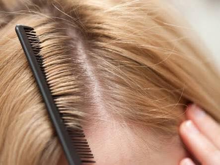 أسباب ظهور قشرة الرأس وعلاجها بخطوات بسيطة