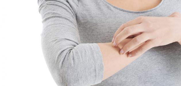أعراض الإصابة بحساسية الجلد وعلاجها