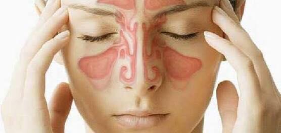 أعراض إلتهاب الجيوب الأنفية وأسبابه